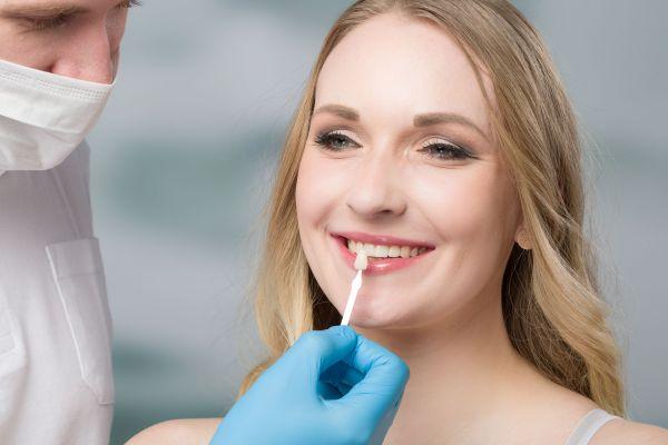 Explore Your Cosmetic Dentistry Options – Dental Veneers